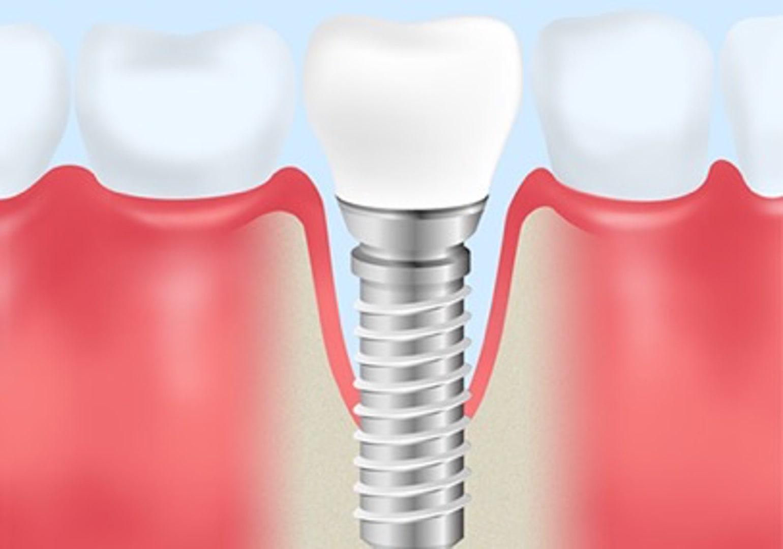 implant merit