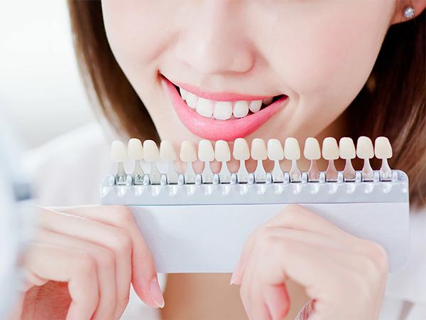 歯の着色を取りたい