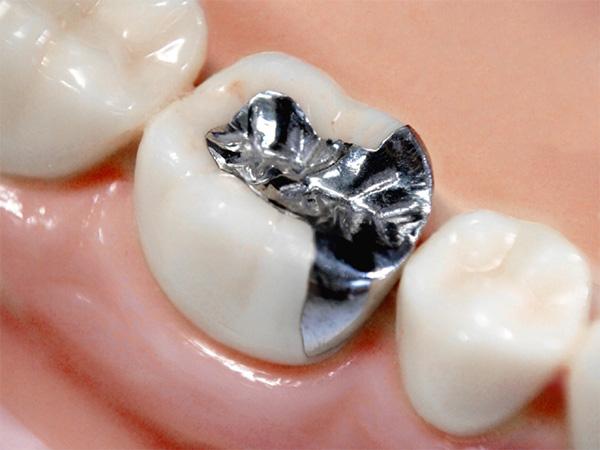 銀歯を白くしたい