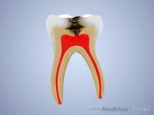 乳歯の虫歯予防
