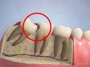 Wisdom teeth risk