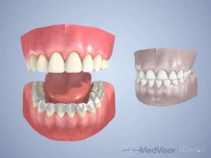about Bruxism2