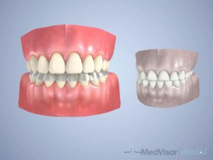 about Bruxism3