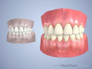 about Bruxism4