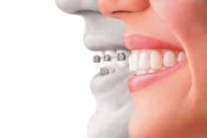 about orthodontics