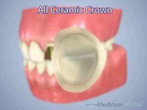 all ceramic crown