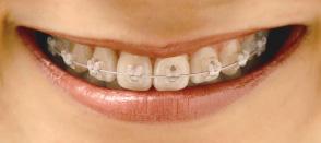 orthodontics fee