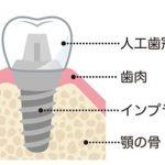 インプラント治療とは、虫歯や歯周病で歯を失ってしまった場所にインプラント体と呼ばれるネジを歯の根の代わりに入れる治療